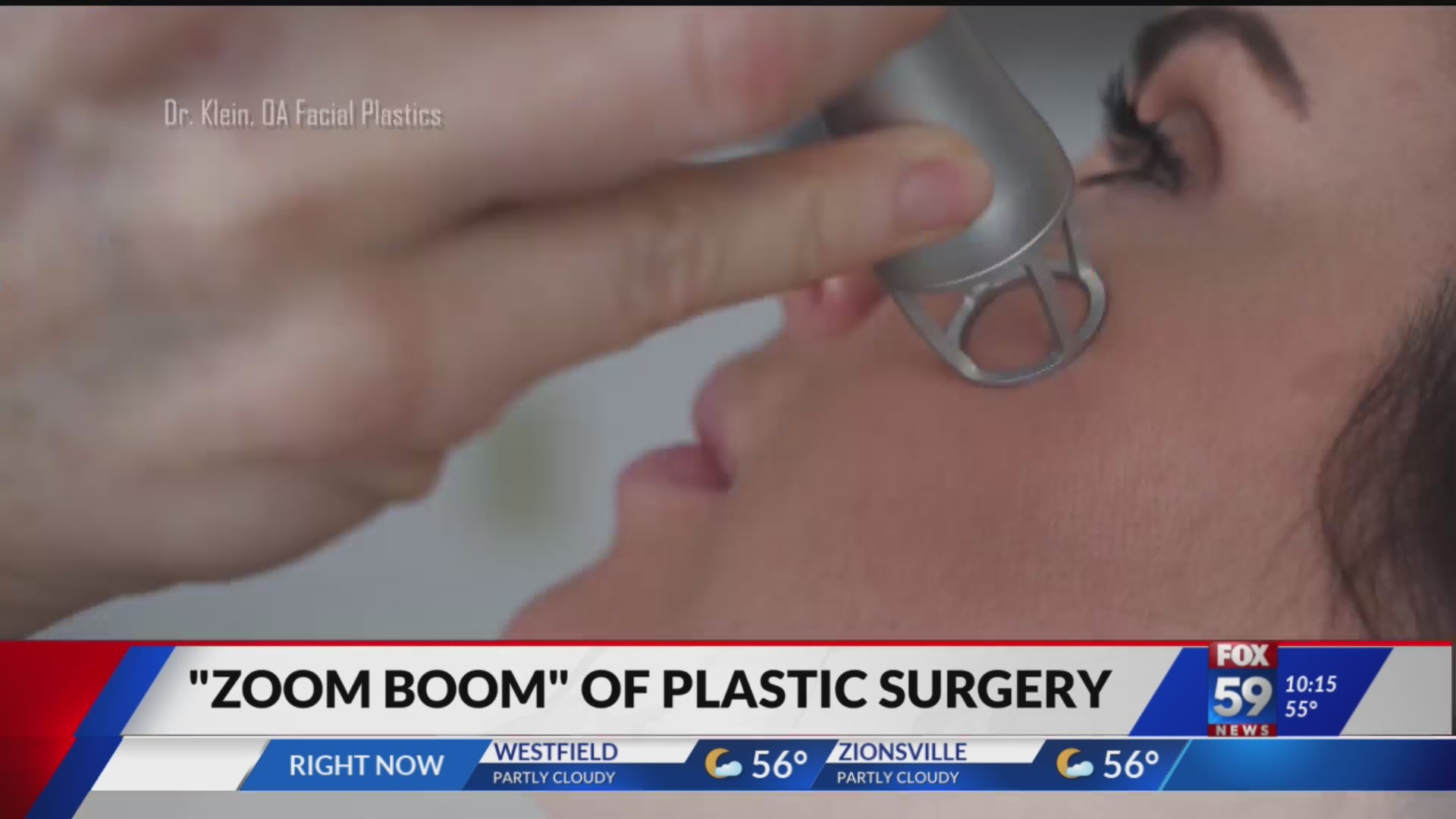 Indiana's pandemic plastic surgery boom
